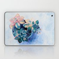Pastel Succulents - an oil painting on canvas Laptop & iPad Skin