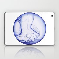 Squeeze, BIC love Laptop & iPad Skin