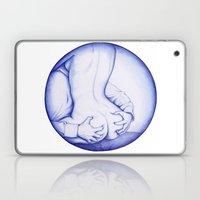 Squeeze, BIC Love Laptop & iPad Skin