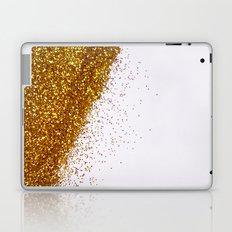 My Favorite Color II (NOT REAL GLITTER) Laptop & iPad Skin