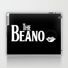 The Beano Laptop & iPad Skin