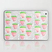 Watermelon Print II Laptop & iPad Skin