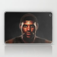 MVP Laptop & iPad Skin