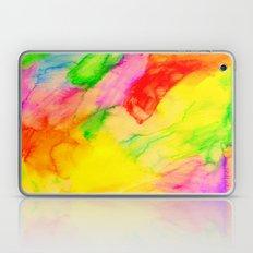 LOVE Laptop & iPad Skin