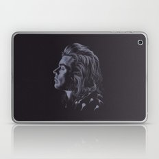 Waiting... (Harry Styles… Laptop & iPad Skin