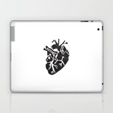 Only Love Laptop & iPad Skin