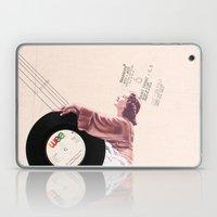 Lace & Vinyl Laptop & iPad Skin