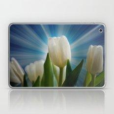 Tulpen Traum Laptop & iPad Skin