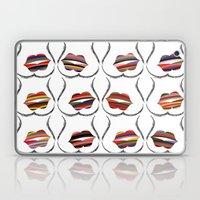 Kiss It! Laptop & iPad Skin