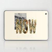 NOW! Laptop & iPad Skin