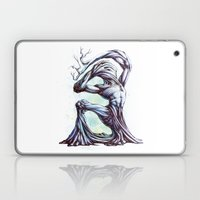 TreeMan Laptop & iPad Skin