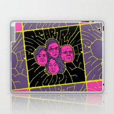 Four-Car Train of Whoop Ass Laptop & iPad Skin