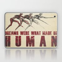 Dreams... Laptop & iPad Skin