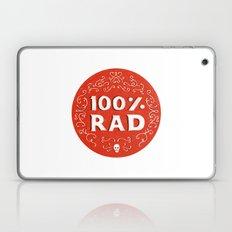100% Rad Laptop & iPad Skin