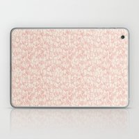 A Plethora of Relaxed Hands in Pink Laptop & iPad Skin