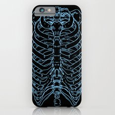 Skeleton Slim Case iPhone 6s