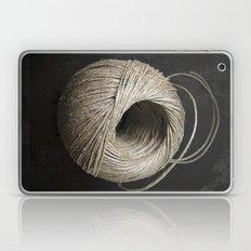 bind Laptop & iPad Skin