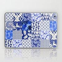 Blue Is Just A Mood Laptop & iPad Skin