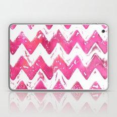 Pink ZigZag Laptop & iPad Skin