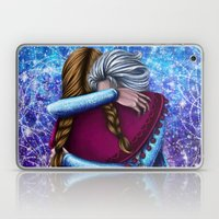 Anna And Elsa ~Frozen Laptop & iPad Skin