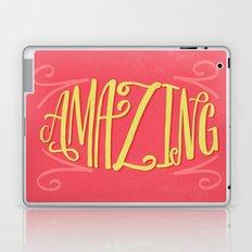 Amazing Laptop & iPad Skin