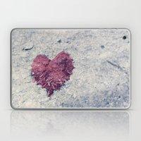 Love Is ..... Everywhere… Laptop & iPad Skin