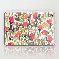 Heart's A Mess Laptop & iPad Skin