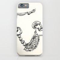 "iPhone & iPod Case featuring ""Dwi Pada Viparata Dandasana"" Skeleton Print by devonstorm"