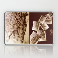 Dance of the Nerves Laptop & iPad Skin