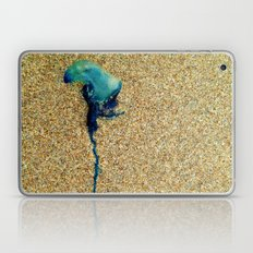 Ouch Laptop & iPad Skin