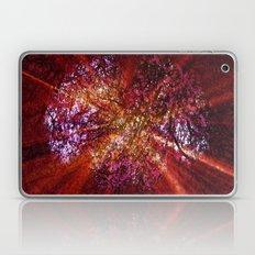 Cherryade. Laptop & iPad Skin