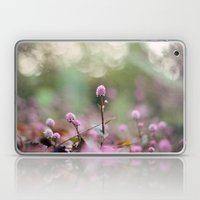Stand Back Up Laptop & iPad Skin