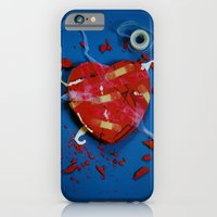 iPhone & iPod Case featuring Fixed by Thomas Eppolito