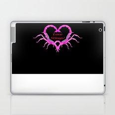 Love Stings - Black Background Laptop & iPad Skin