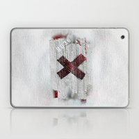 Cross my heart and hope .... Laptop & iPad Skin