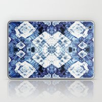 Blue Silk Tie-Dye Laptop & iPad Skin
