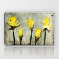 Daffodil's Laptop & iPad Skin