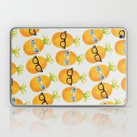 Pineapple Party! Laptop & iPad Skin