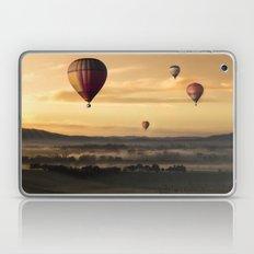 Hot air Laptop & iPad Skin