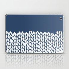 Half Knit Navy Laptop & iPad Skin