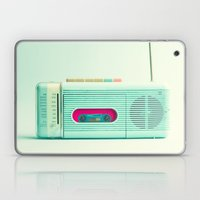 Radio Days  Laptop & iPad Skin