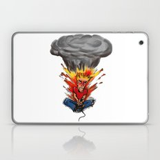 Intense Gamer Laptop & iPad Skin