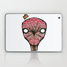 King SPiDAH Laptop & iPad Skin