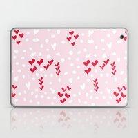 Giving Hearts Gving Hope… Laptop & iPad Skin