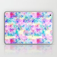 Pineapple Dream Laptop & iPad Skin