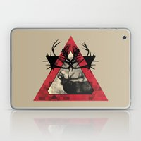 The Challenge Laptop & iPad Skin