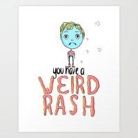 Weird Rash Art Print