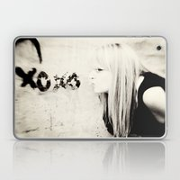 xoxo Laptop & iPad Skin