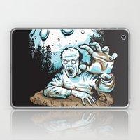 Z! Laptop & iPad Skin