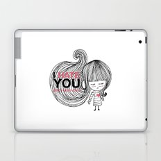 I Hate You (but i love you) #hatelove Laptop & iPad Skin